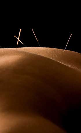 Dry Needling & Acupuncture