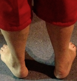 Clinical Kit 11-03-2015 Acute Achilles Rupture - What would you advise?
