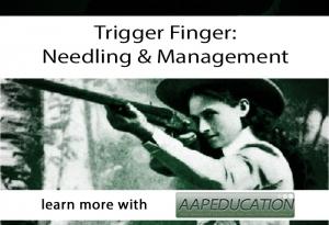 Trigger Finger Needling and Management