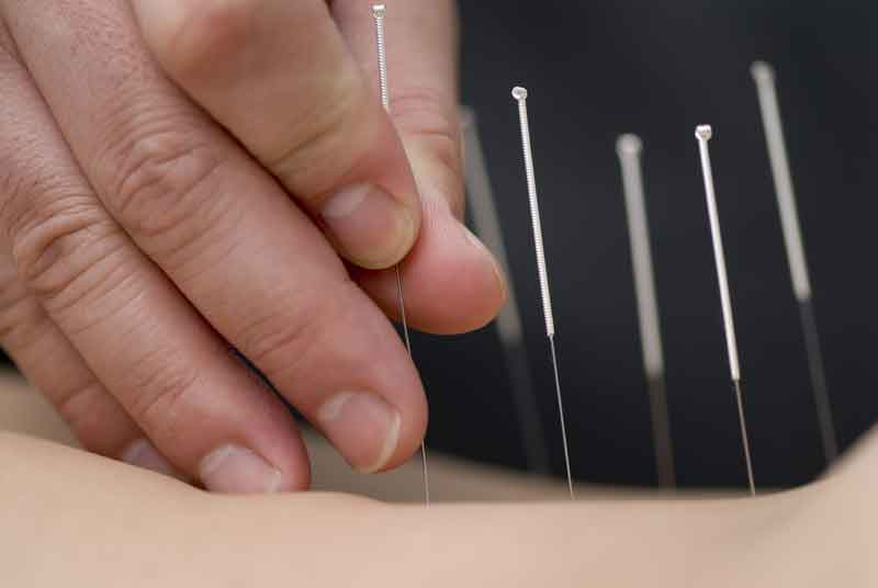 Comprehensive Advanced Upper Quadrant dry needling and acupuncture program